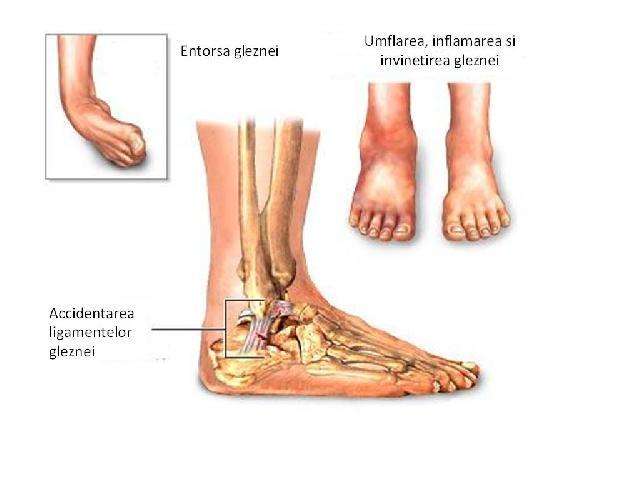 de ce gambele mele se înghesuie când merg de ce piciorul meu stâng este umflat și dureros